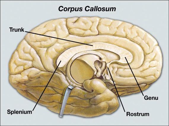 Corpus Callosum : Anatomy, Location & Function