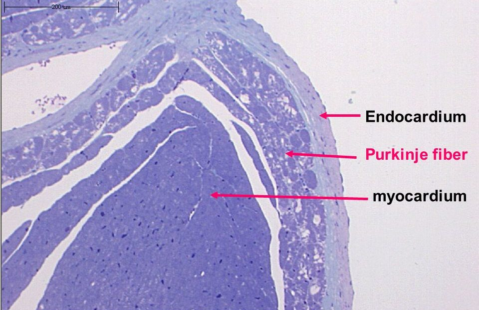 purkinje fibers histology